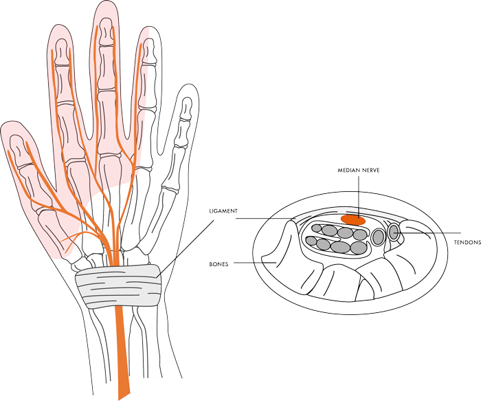carpaltunnelsyndrome img1 - Dr Cameron Mackay