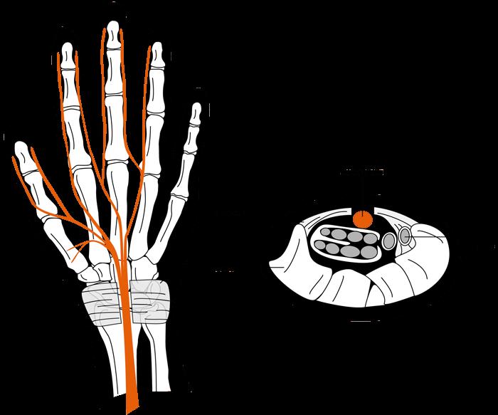 carpaltunnelsyndrome img2 - Dr Cameron Mackay