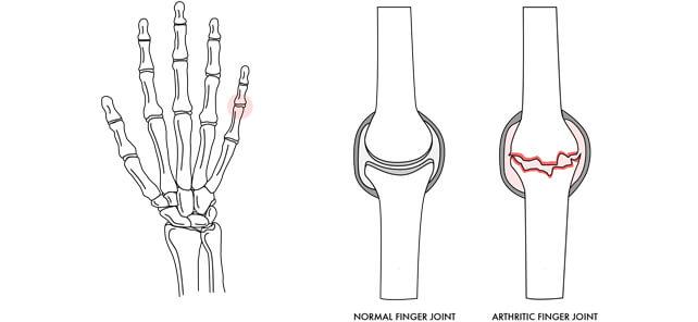 arthritis img1 - Dr Cameron Mackay